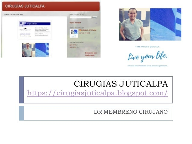 CIRUGIAS JUTICALPA https://cirugiasjuticalpa.blogspot.com/ DR MEMBRENO CIRUJANO