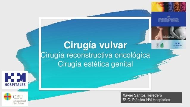 Cirugía vulvar Cirugía reconstructiva oncológica Cirugía estética genital Xavier Santos Heredero Sº C. Plástica HM Hospita...