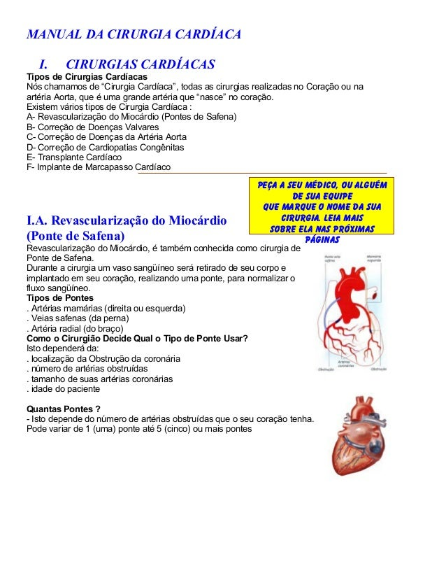 "MANUAL DA CIRURGIA CARDÍACA   I.    CIRURGIAS CARDÍACASTipos de Cirurgias CardíacasNós chamamos de ""Cirurgia Cardíaca"", to..."