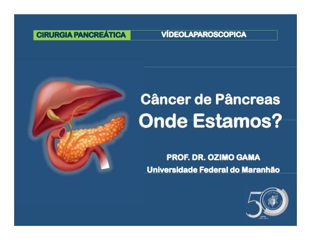 CIRURGIA PANCREÁTICA Câncer de Pâncreas Onde Estamos? VÍDEOLAPAROSCOPICA PROF. DR. OZIMO GAMA Universidade Federal do Mara...