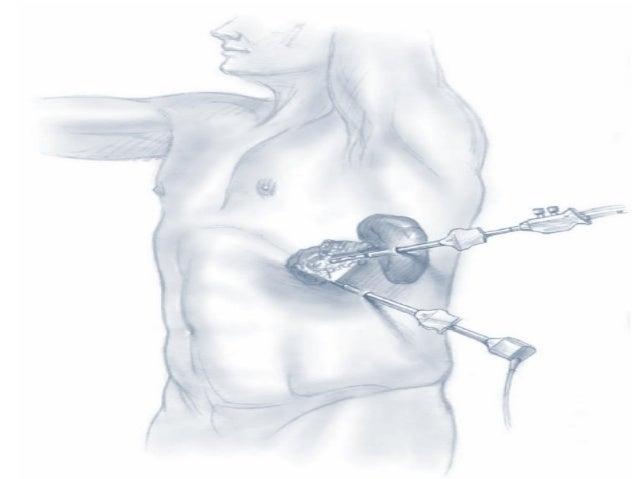 Fundamentos Técnicos da Cirurgia Pancreática