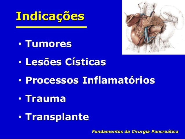 Vias de Acesso • Laparotomia • Laparoscopia Fundamentos da Cirurgia Pancreática