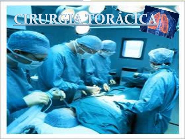 O que é cirurgia torácica? A Cirurgia Torácica é a especialidade que trata as afecções dos pulmões, brônquios, traquéia, d...