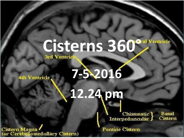 Cisterns 360° 7-5-2016 12.24 pm