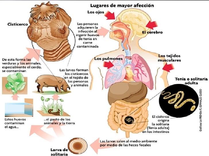 Cisticercosis Slide 3