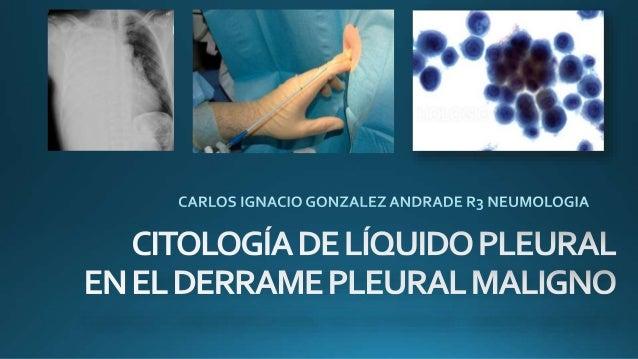 CASO CLÍNICO •A.L.V femenino de 39 años de edad. No se conoce con enfermedades previas. Niega alergias conocidas. Enero 2...