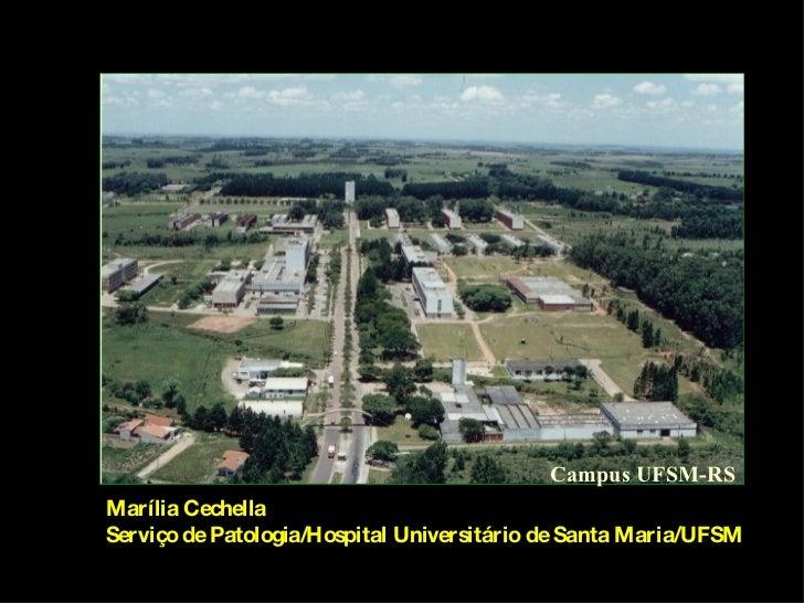 Campus UFSM-RS Marília Cechella Serviço de Patologia/Hospital Universitário de Santa Maria/UFSM