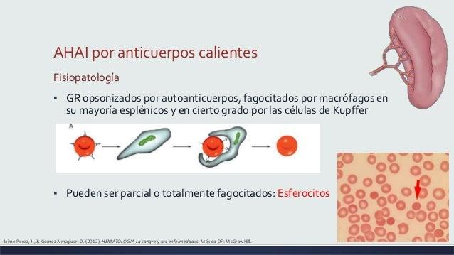J And M Auto >> Citopenias autoinmunologicas: anemia hemolitica autoinmune y neutrope…
