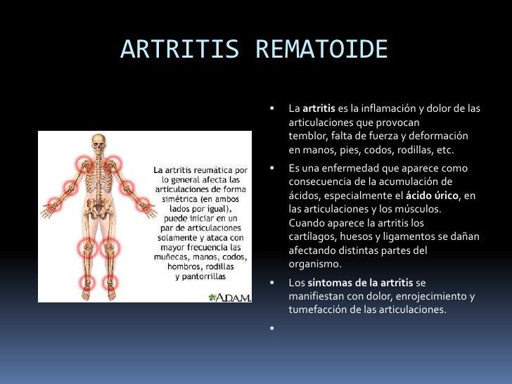 tratamiento acido urico alto acido urico leche desnatada alcohol y acido urico pdf