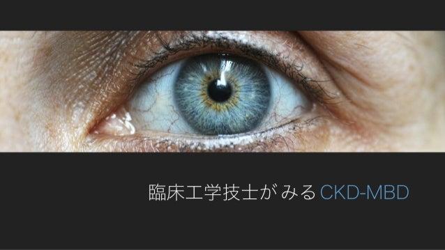 臨床工学技士がみるCKD-MBD
