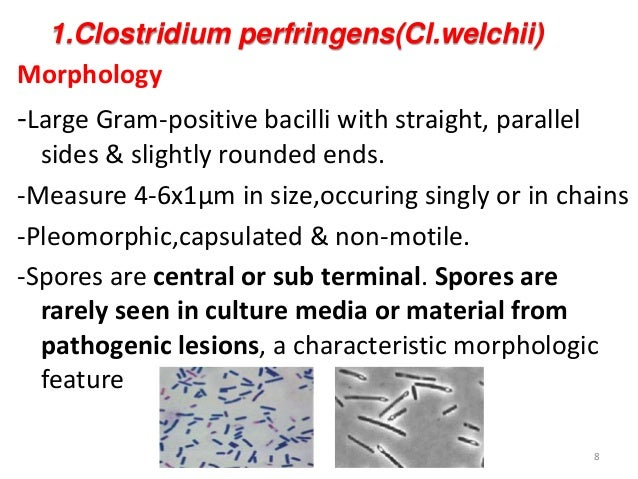 clostridium perfringens essay Clostridium perfringens (c perfringens) is a spore-forming gram-positive bacterium that is found in many environmental sources as well as in the intestines of humans and animals c perfringens is commonly found on raw meat and poultry it prefers to grow in conditions with very little or no oxygen.
