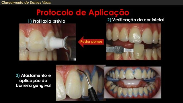 Clareamento Dental Interno