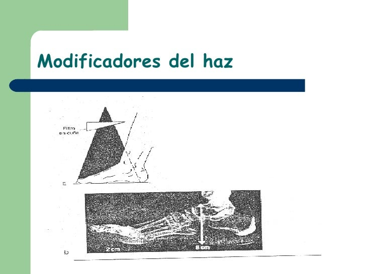 Modificadores del haz