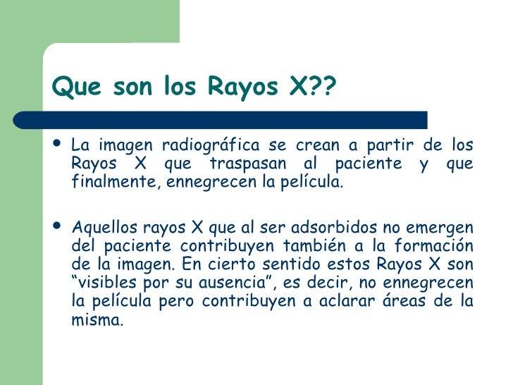 Que son los Rayos X?? <ul><li>La imagen radiográfica se crean a partir de los Rayos X que traspasan al paciente y que fina...