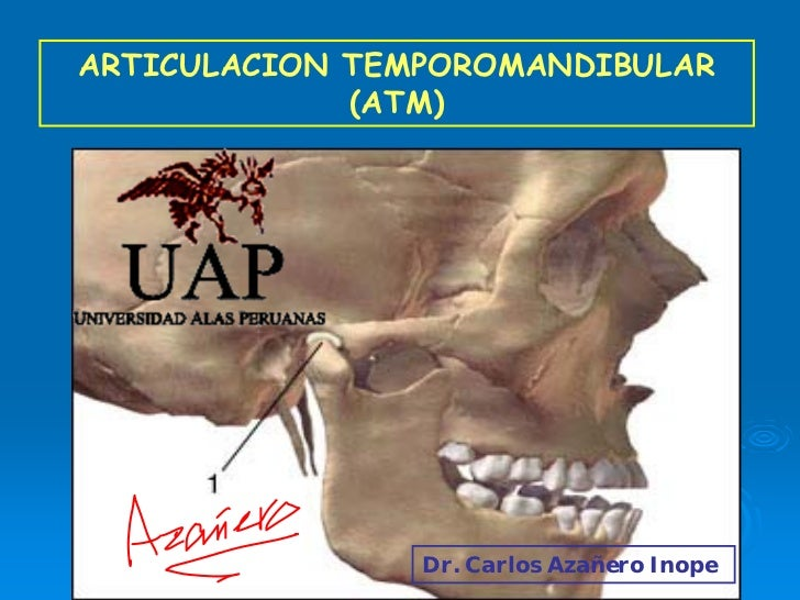 ARTICULACION TEMPOROMANDIBULAR              (ATM)                              Dr. Carlos Azañero Inope            Dr. Car...