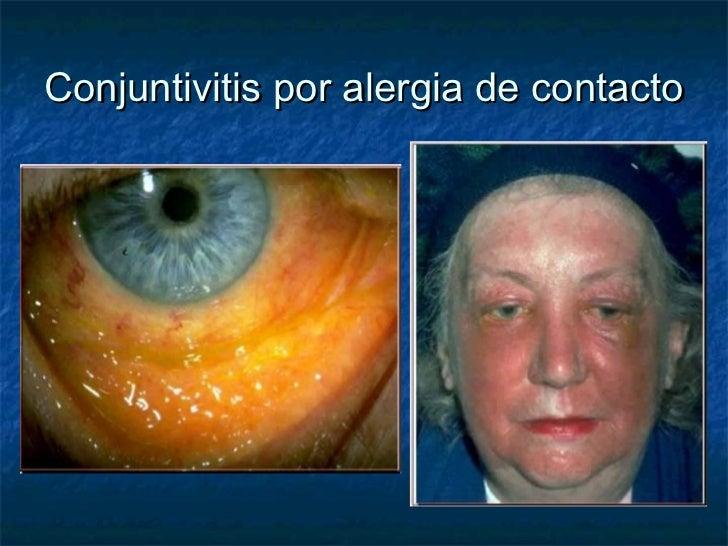 Atopichesky se puede comer la dermatitis que