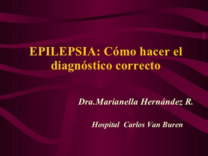 EPILEPSIA: Cómo hacer el diagnóstico correcto Dra.Marianella Hern ández R. Hospital  Carlos Van Buren