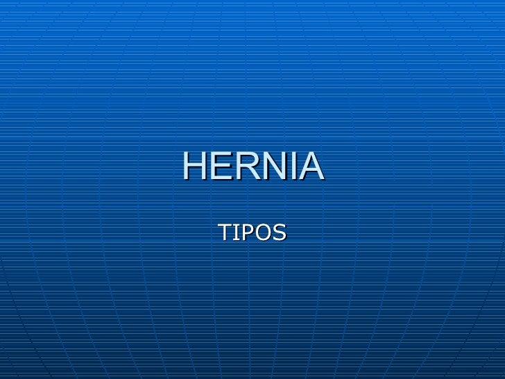 HERNIA TIPOS
