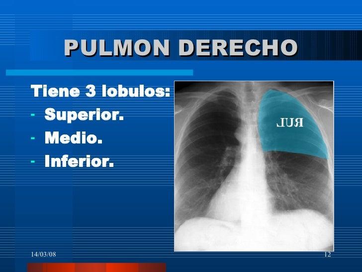 Radiología del Pulmón: anatomía lobar y segmentaria