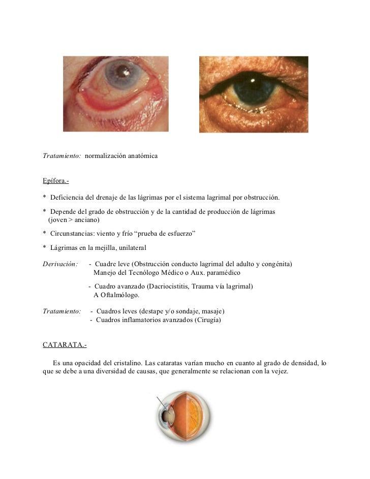 Vistoso Anatomía De Las Lágrimas Motivo - Imágenes de Anatomía ...