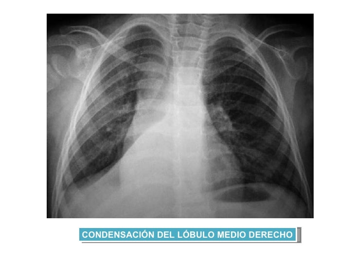 Clase 15 Sindrome De Atelectasia Pulmonar