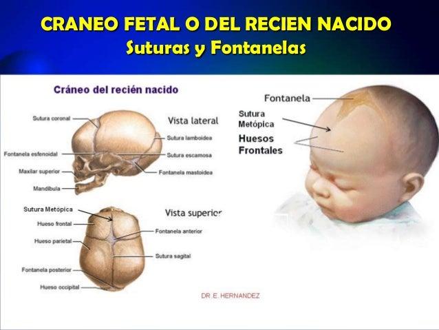 FONTANELAS CRANEO PDF
