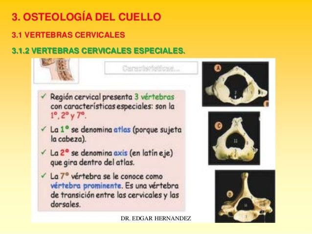 3. OSTEOLOGÍA DEL CUELLO 3.1 VERTEBRAS CERVICALES 3.1.2 VERTEBRAS CERVICALES ESPECIALES.  DR. EDGAR HERNANDEZ