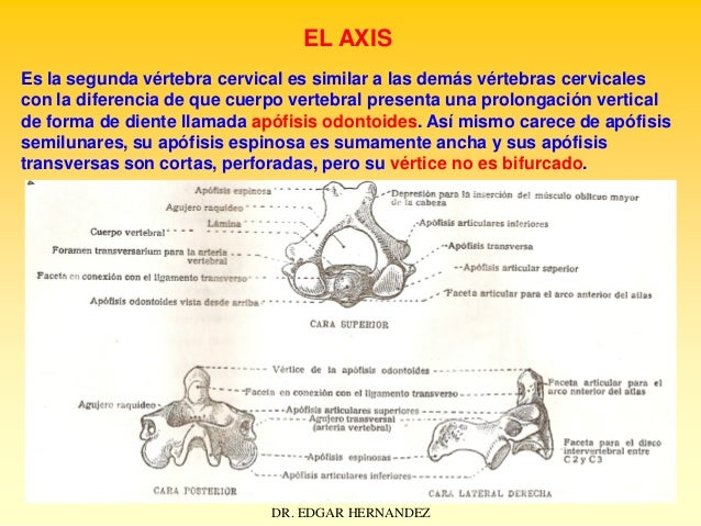 EL AXIS Es la segunda vértebra cervical es similar a las demás vértebras cervicales con la diferencia de que cuerpo verteb...