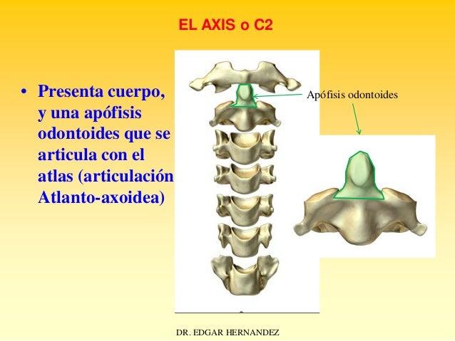EL AXIS o C2  • Presenta cuerpo, y una apófisis odontoides que se articula con el atlas (articulación Atlanto-axoidea)  Ap...