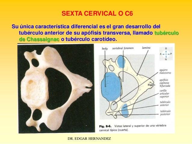 SEXTA CERVICAL O C6 Su única característica diferencial es el gran desarrollo del tubérculo anterior de su apófisis transv...