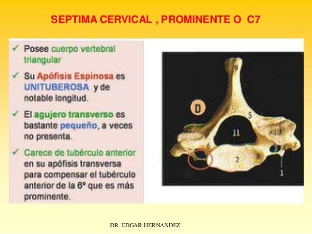 SEPTIMA CERVICAL , PROMINENTE O C7  DR. EDGAR HERNANDEZ