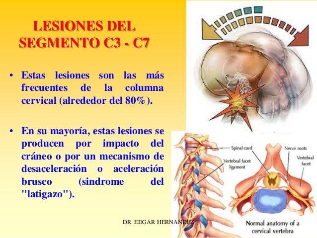 LESIONES DEL SEGMENTO C3 - C7 • Estas lesiones son las más frecuentes de la columna cervical (alrededor del 80%). • En su ...