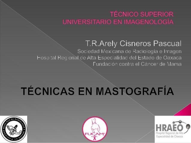 MASTOGRAFÍA: Estudio radiológico de las glándulas mamarias mediante el uso de radiación ionizante, con el objetivo de dete...
