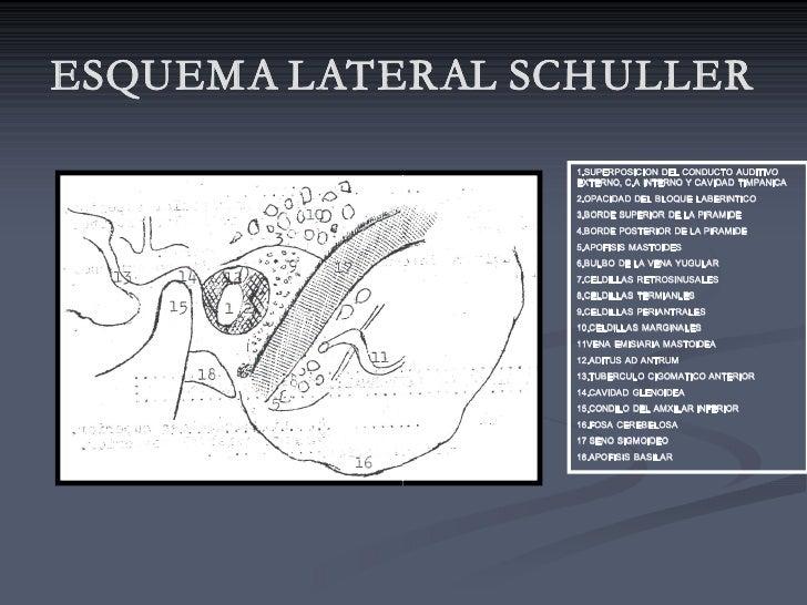ESQUEMA LATERAL SCH ULLER                   1.SUPERPOSICION DELCONDUCTO AUDITIVO                   EXTERNO,C.AINTERN...