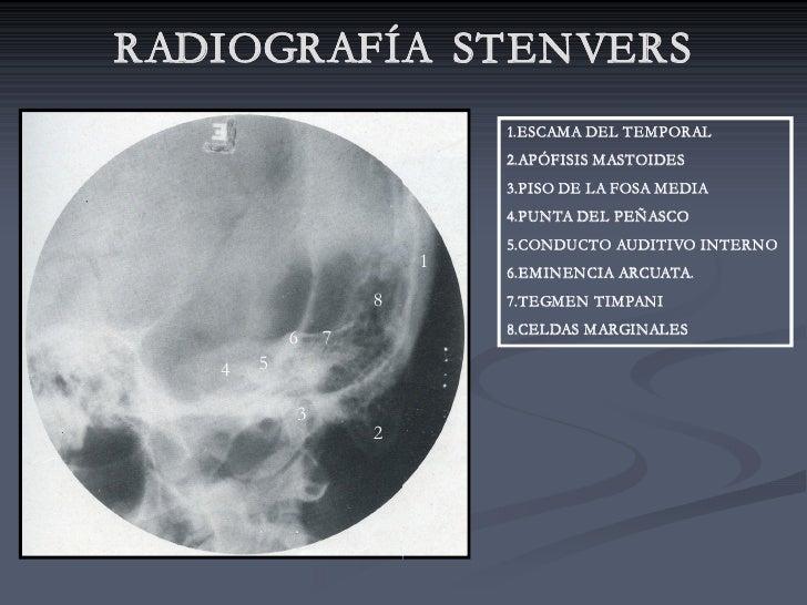 RADIOGRAFÍA STENVERS                            1.ESCAMA DEL TEMPORAL                            2.APÓFISIS MASTOIDES     ...