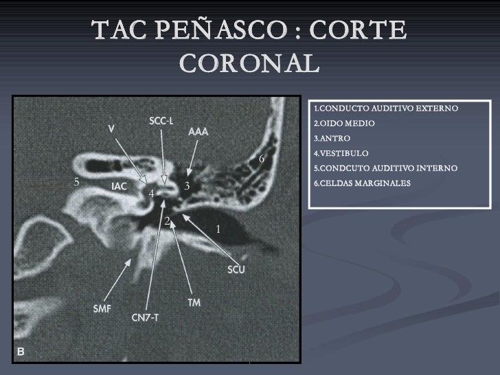 TAC PEÑASCO : CORTE          CORONAL                            1.CONDUCTO AUDITIVO EXTERNO                            2.O...