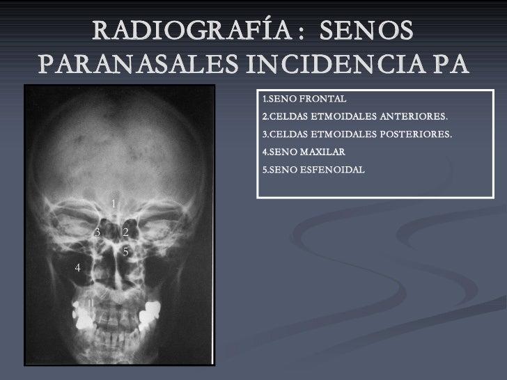 RADIOGRAFÍA : SENOS PARANASALES INCIDENCIA PA                   1.SENO FRONTAL                   2.CELDAS ETMOIDALES ANTER...
