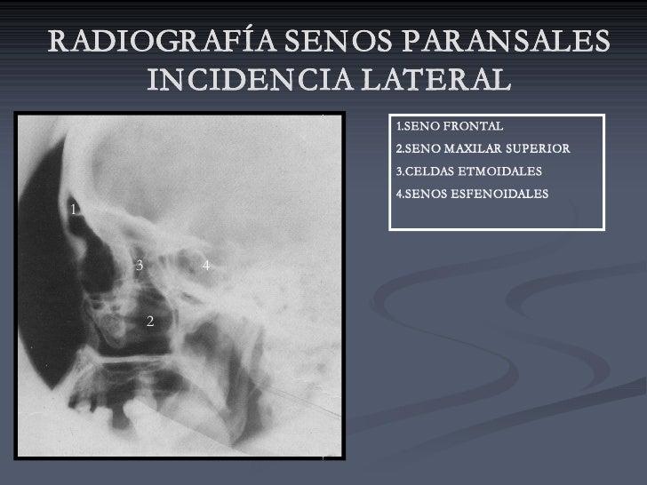 RADIOGRAFÍA SENOS PARANSALES      INCIDENCIA LATERAL                  1.SENO FRONTAL                  2.SENO MAXILAR SUPER...