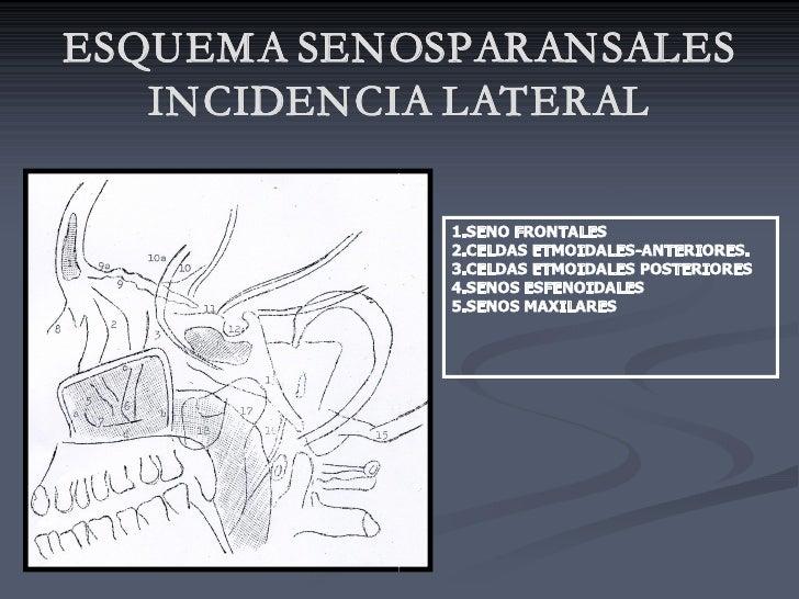 ESQUEMA SENOSPARANSALES    INCIDENCIA LATERAL               1.SENOFRONTALES              2.CELDASETMOIDALESANTERIORES....