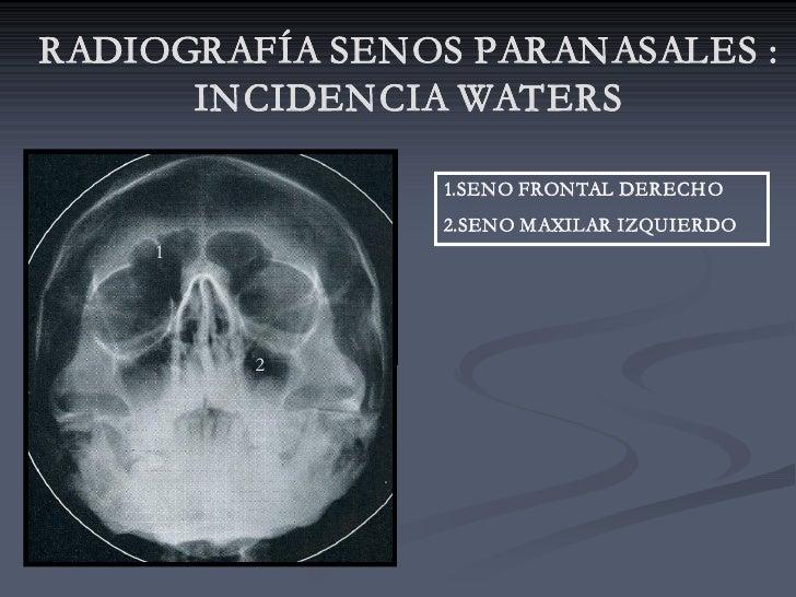 RADIOGRAFÍA SENOS PARANASALES :       INCIDENCIA WATERS                  1.SENO FRONTAL DERECH O                 2.SENO MA...