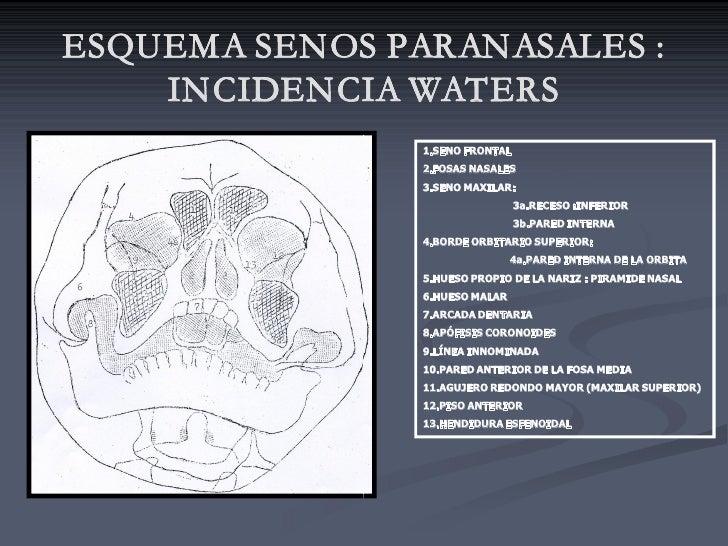 ESQUEMA SENOS PARANASALES :     INCIDENCIA WATERS                 1.SENOFRONTAL                 2.FOSASNASALES        ...