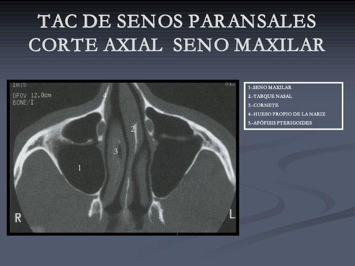 TAC DE SENOS PARANSALES CORTE AXIAL SENO MAXILAR                        1-.SENO MAXILAR        4               2.-TABQUE N...