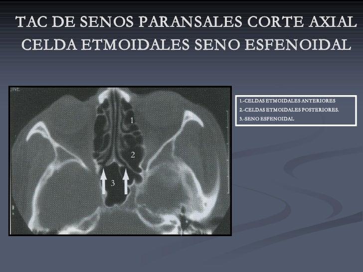 TAC DE SENOS PARANSALES CORTE AXIAL  CELDA ETMOIDALES SENO ESFENOIDAL                         1.-CELDAS ETMOIDALES ANTERIO...