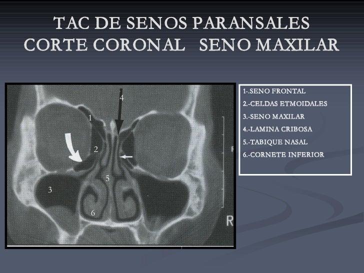 TAC DE SENOS PARANSALES CORTE CORONAL SENO MAXILAR                        1-.SENO FRONTAL                   4             ...