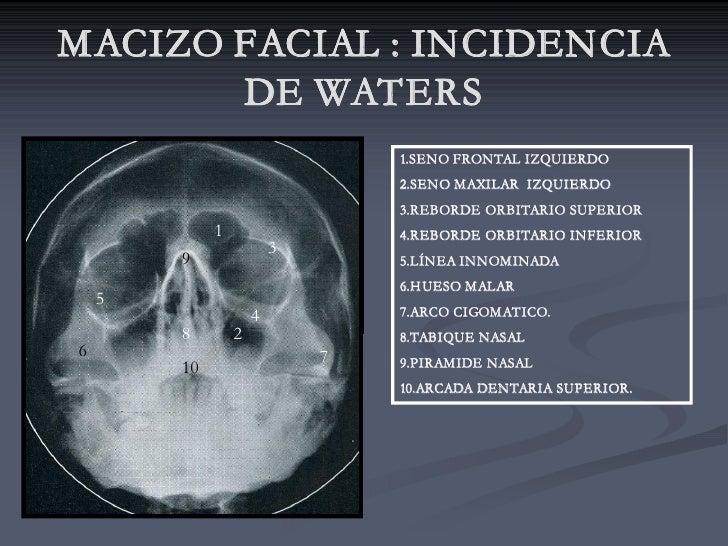 MACIZO FACIAL : INCIDENCIA        DE WATERS                                  1.SENO FRONTAL IZQUIERDO                     ...