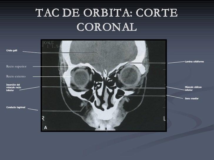 TAC DE ORBITA: CORTE                           CORONAL Cristagalli                                               Lamina...