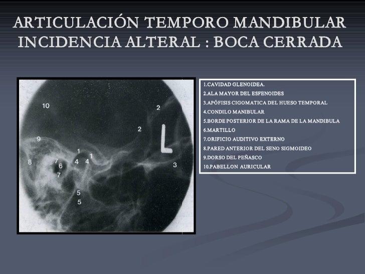 ARTICULACIÓN TEMPORO MANDIBULAR INCIDENCIA ALTERAL : BOCA CERRADA                           CERRADA                     1...