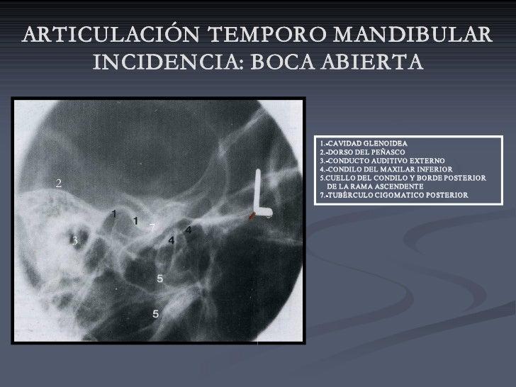 ARTICULACIÓN TEMPORO MANDIBULAR      INCIDENCIA: BOCA ABIERTA                       ABIERTA                      1.CAVID...