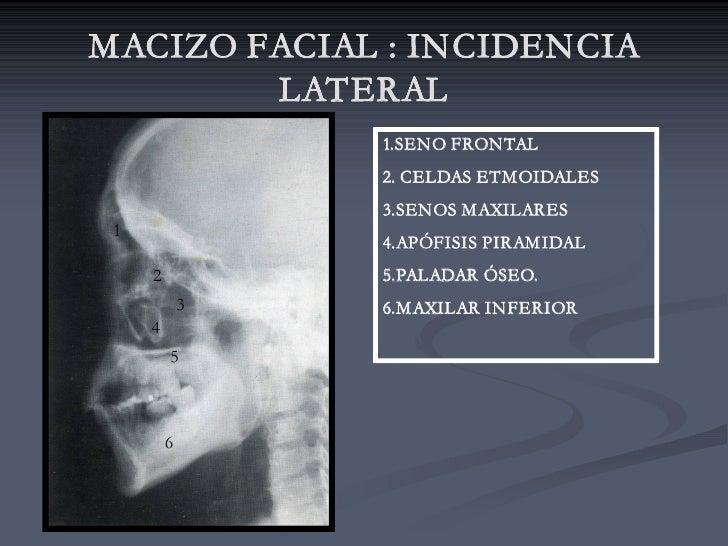 MACIZO FACIAL : INCIDENCIA         LATERAL                  1.SENO FRONTAL                  2. CELDAS ETMOIDALES          ...