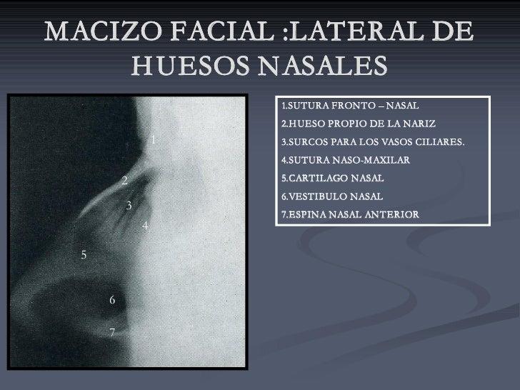 MACIZO FACIAL :LATERAL DE      H UESOS NASALES                       1.SUTURA FRONTO – NASAL                       2.H UES...